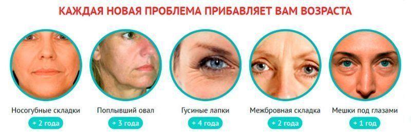 Морщины, прибавляющие возраст