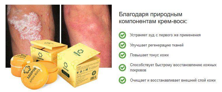 Эффективность средства Здоров от псориаза